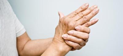 artritis-za-objavu
